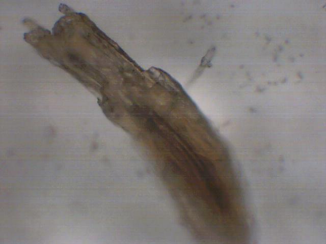 黑头显微镜图片_黑头显微镜图片,显微镜下挤黑头gif,植物显微镜_大山谷图库